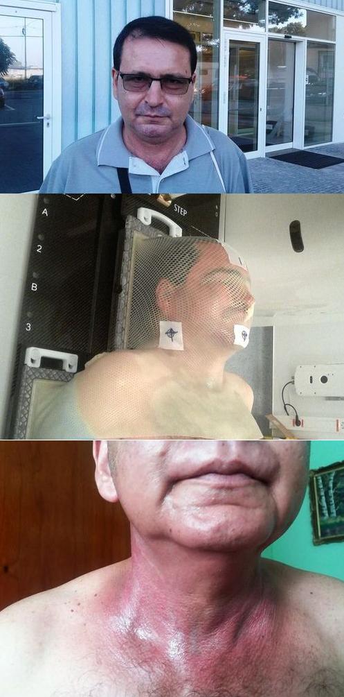 Radu Tuglea - evolutie cancer
